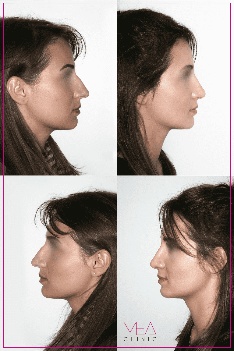 korekcja nosa w mea clinic