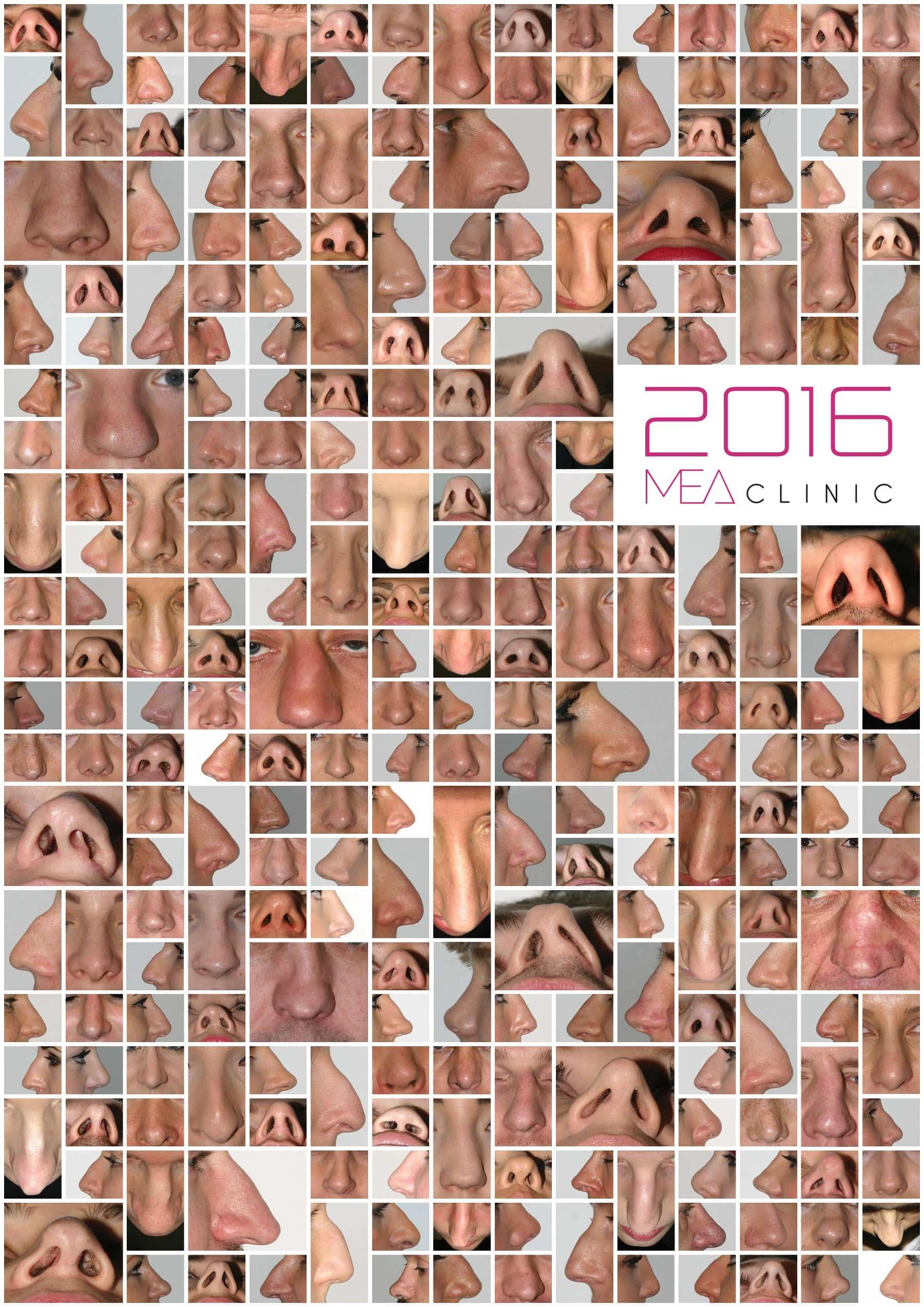 korekcja nosa - kolaż