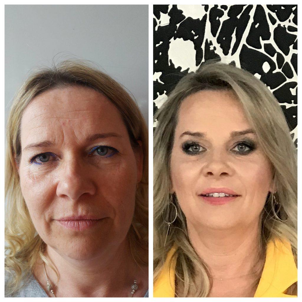 NIechirurgiczny lifting twarzy