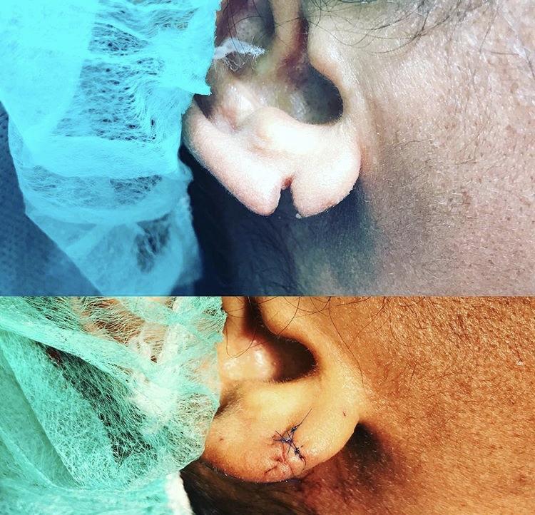 Rekonstrukcja płatka ucha